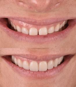 carillas dentales cambre
