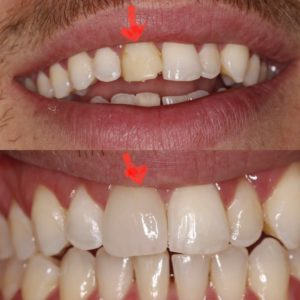 Antes y después carillas dentales diente roto cambre