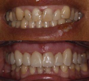 Antes y después carillas dentales dientes apiñados cambre
