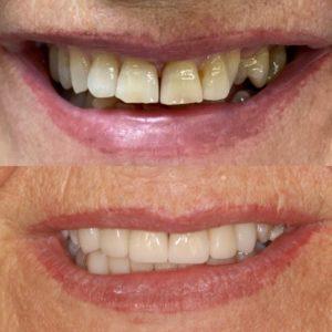 Antes y después carillas dentales dientes gastados