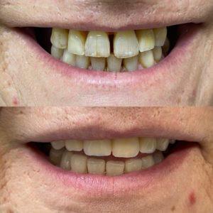 Antes y después - implantes dentales