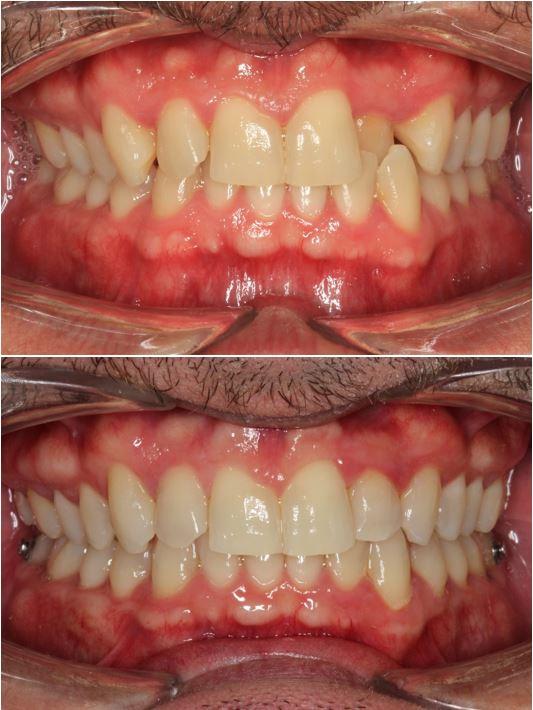 Antes y después ortodoncia invisible