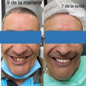 Implantes dentales - Antes y después