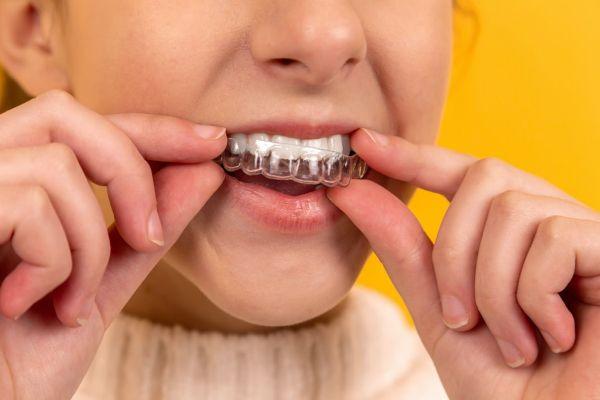 Ortodoncia invisible: la solución más cómoda y discreta para lucir una sonrisa perfecta