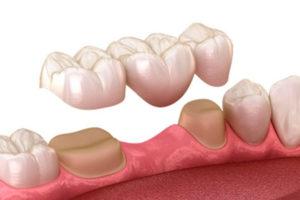Puentes dentales tradicionales