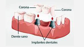 Puentes sostenidos por implantes